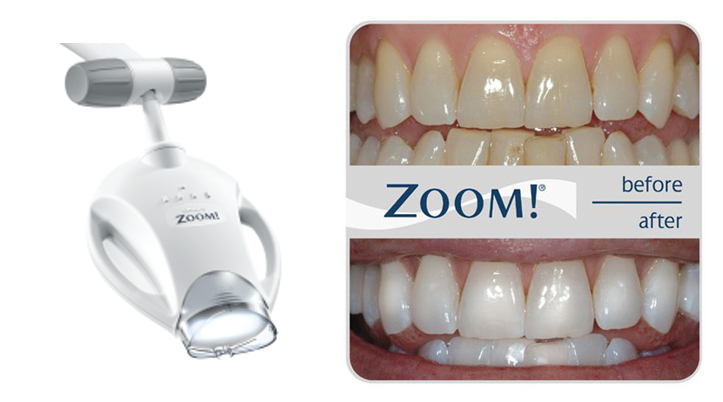 Zoom In Surgery Whitening for Immediate Results!
