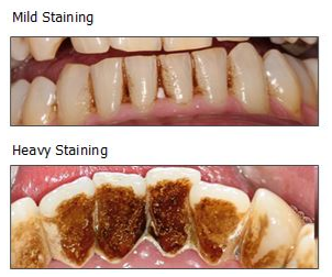 Tips to help avoid stained teeth